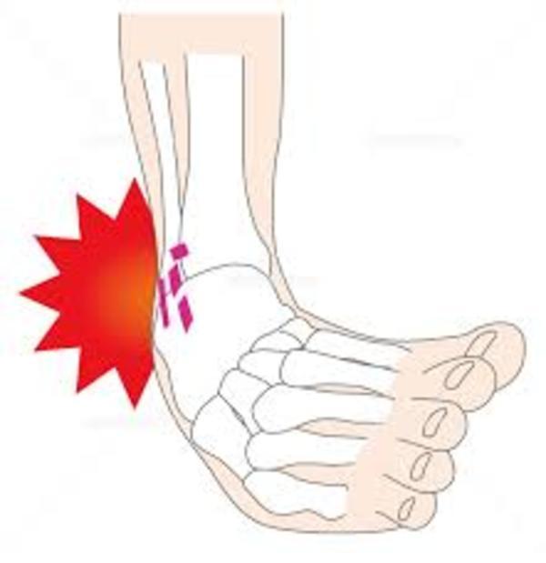 【足首ひねった】時の対処法3つ!実は骨折よりも怖い捻挫!放っておかずに早めの処置をサムネイル